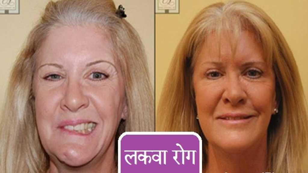 paralysis treatment hindi me